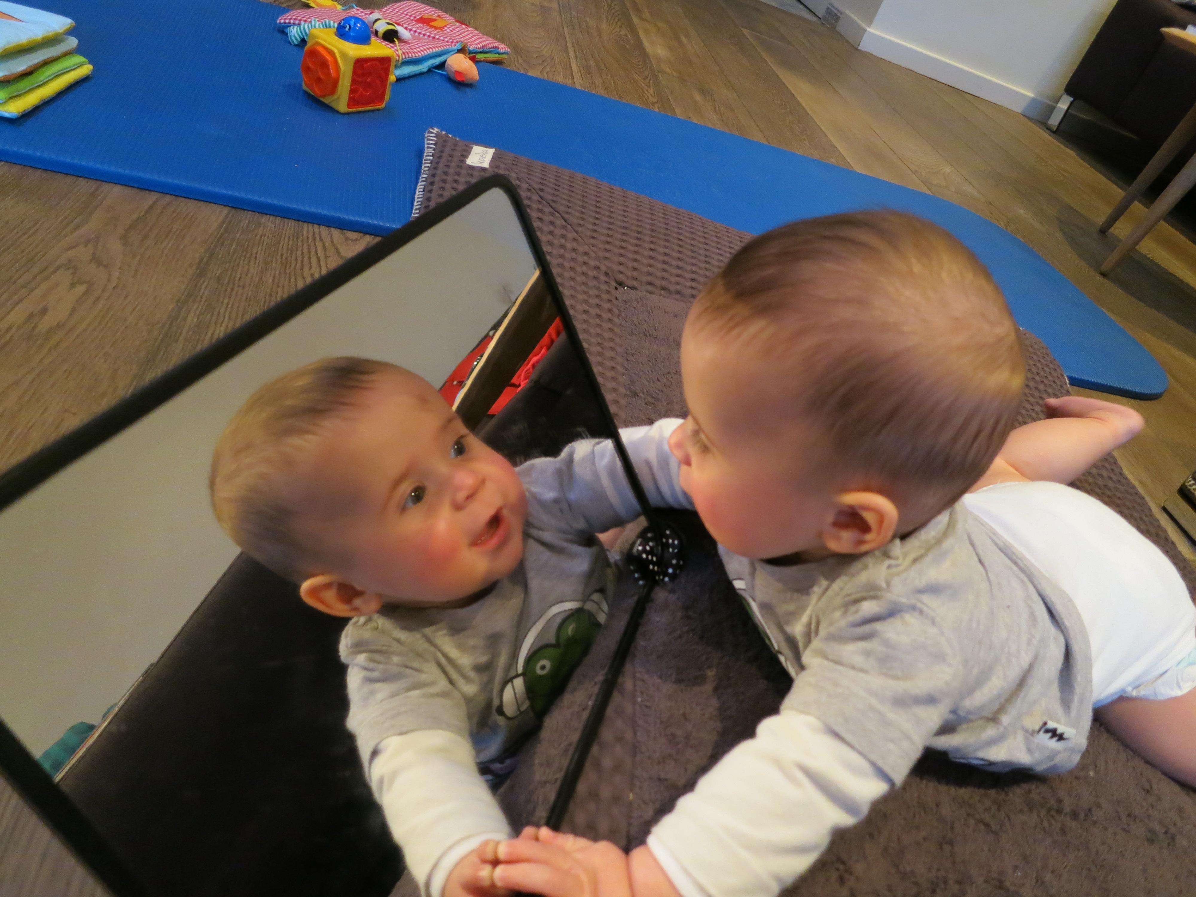 baby asymmetrie scheef plat